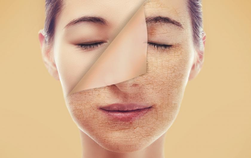 Bagaimana Cara Menghilangkan Kulit kering di Wajah? Ini Jawabannya